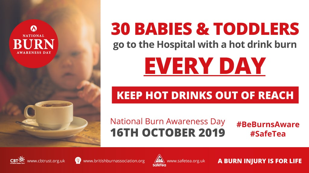 National Burn Awareness Day